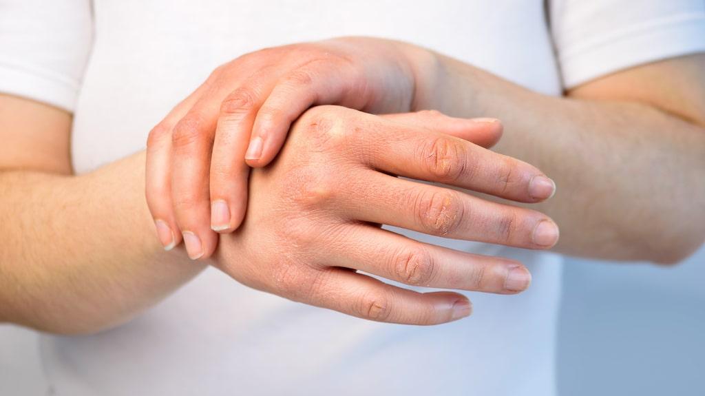 Att tvätta händerna ofta kan slita på huden.