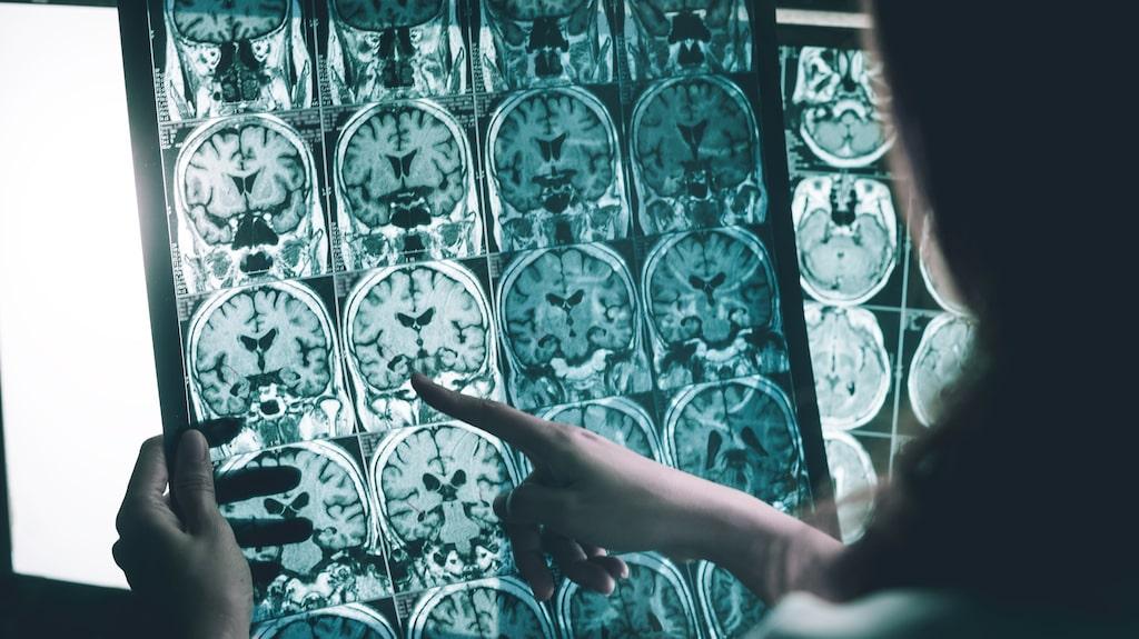 Genom att upptäcka läckor i blod- hjärnbarriären tror forskare på södra Karliforniens universitet att man kan få en större förståelse för hur Alzheimers sjukdom uppstår.