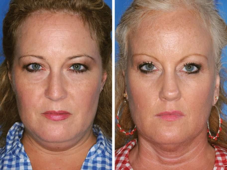 Tvillingen till höger är rökare, systern till vänster har aldrig rökt. Skillnaden visar sig främst vid rynkorna kring näsa och mun.