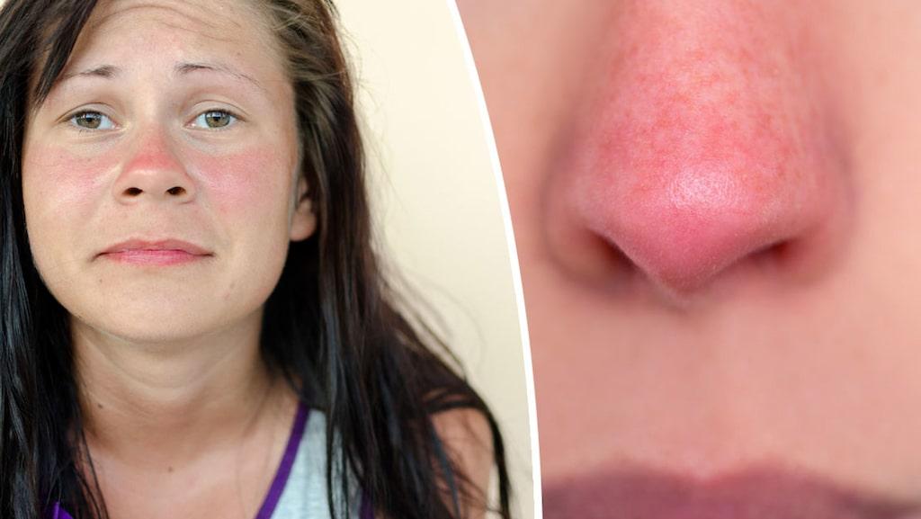 Rosacea kan vara olika svår. Allt från en diffus rodnad till blossande röd hy och inflammerade porer.