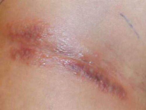 Nyuptäckta symptom med sår och blåsor kan se ut så här