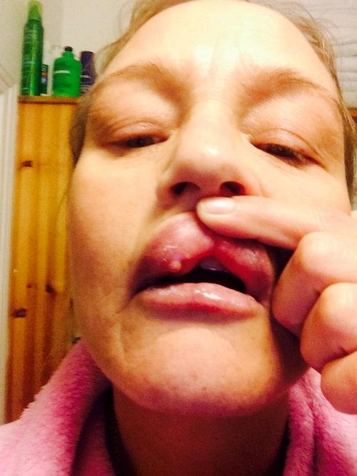 Jeanett Ryding fick varbölder efter att ha injicerat en filler på salong.